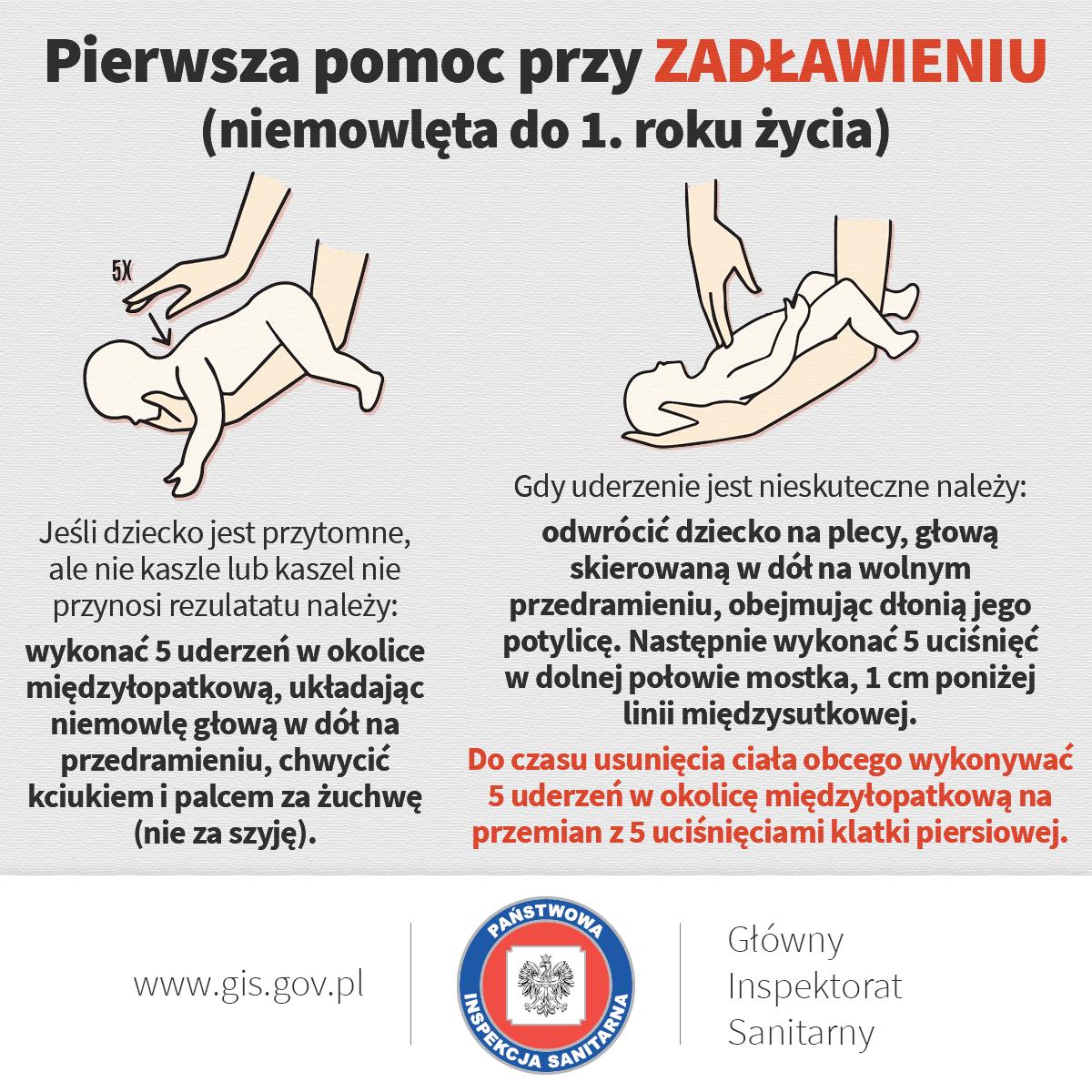 zadławienie pierwsza pomoc niemowlę